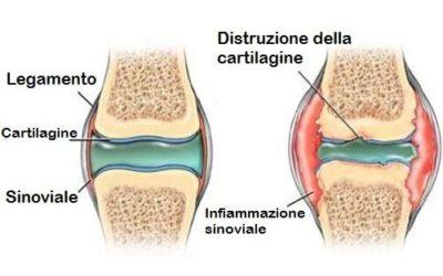La Cartilagine